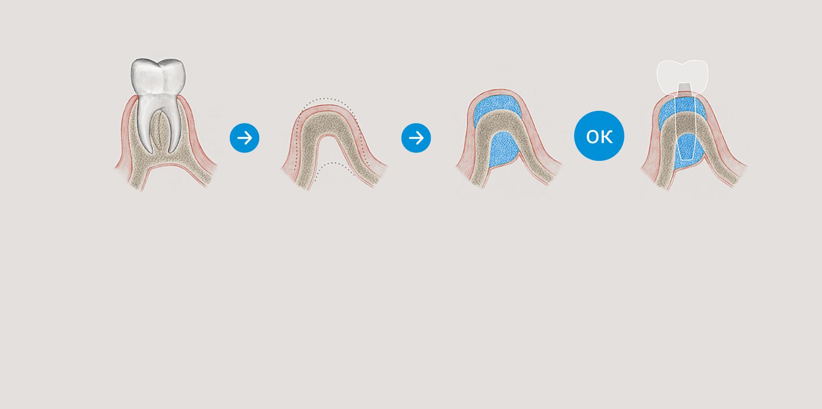 Восстановление костной ткани после удаления зуба